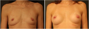 breast-implants-before-and-after-photo-10
