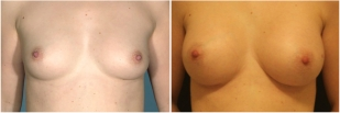 breast-implants-before-and-after-photo-13-1