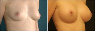 breast-implants-before-and-after-photo-13-2
