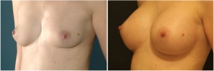 breast-implants-before-and-after-photo-13-3