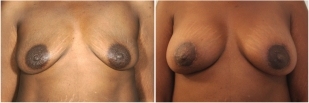 breast-implants-before-and-after-photo-14