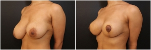 breast-lift-before-and-after-photo-10-2