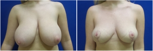 breast-lift-before-and-after-photo-12-1
