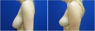 breast-lift-before-and-after-photo-12-2