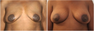 breast-lift-before-and-after-photo-13