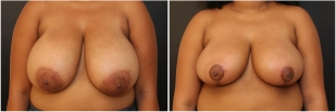 breast-lift-before-and-after-photo-14-1