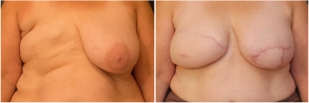 breast-reconstruction-flap-before-and-after-photo-10