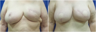 breast-reconstruction-flap-before-and-after-photo-13-1