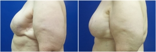 breast-reconstruction-flap-before-and-after-photo-13-2