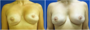 breast-reconstruction-revision-before-after-photo-10