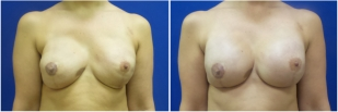 breast-reconstruction-revision-before-after-photo-11