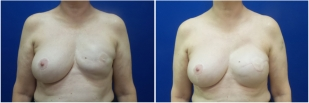 breast-reconstruction-revision-before-after-photo-12-1