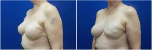 breast-reconstruction-revision-before-after-photo-12-2