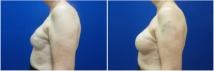 breast-reconstruction-revision-before-after-photo-12-3