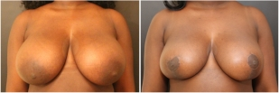 breast-reduction-before-after-photo-11