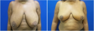 breast-reduction-before-after-photo-12-1
