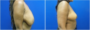 breast-reduction-before-after-photo-12-2