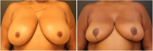 breast-reduction-before-after-photo-13-1