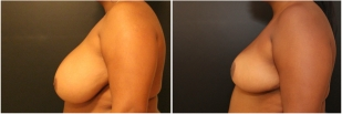 breast-reduction-before-after-photo-13-2