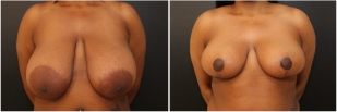 breast-reduction-before-after-photo-14-1