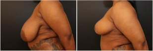 breast-reduction-before-after-photo-14-2