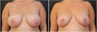 breast-reduction-before-after-photo-15-1
