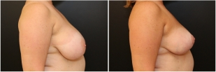 breast-reduction-before-after-photo-15-2