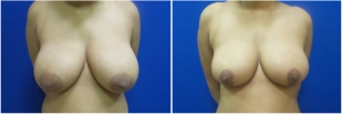 breast-reduction-before-after-photo-16