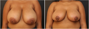 breast-reduction-before-after-photo-17-1