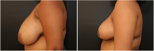 breast-reduction-before-after-photo-17-2