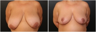 breast-reduction-before-after-photo-18-1
