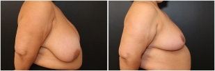 breast-reduction-before-after-photo-18-2