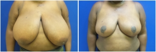 breast-reduction-before-after-photo-19-1