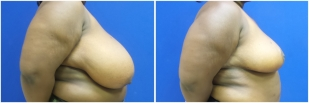 breast-reduction-before-after-photo-19-2