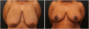 breast-reduction-before-after-photo-20-1