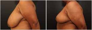 breast-reduction-before-after-photo-20-2