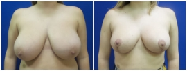 breast-reduction-before-after-photo-21-1