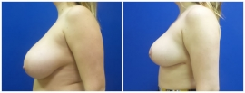 breast-reduction-before-after-photo-21-2