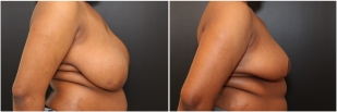 breast-reduction-before-after-photo-22-1