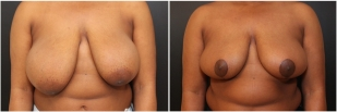 breast-reduction-before-after-photo-22-2