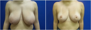 breast-reduction-before-after-photo-23-1