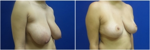 breast-reduction-before-after-photo-23-2