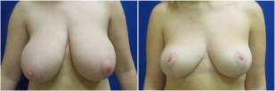 breast-reduction-before-after-photo-24-1