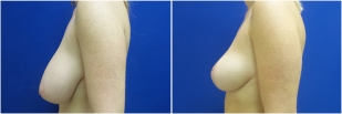 breast-reduction-before-after-photo-24-2