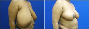 breast-reduction-before-after-photo-25