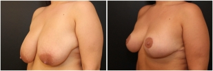 breast-reduction-before-after-photo-26-2