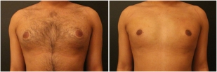 gynecomastia-before-after-and-after-photo-10-1
