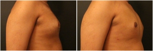 gynecomastia-before-after-and-after-photo-10-3