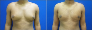 gynecomastia-before-after-and-after-photo-12-1