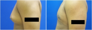 gynecomastia-before-after-and-after-photo-12-2